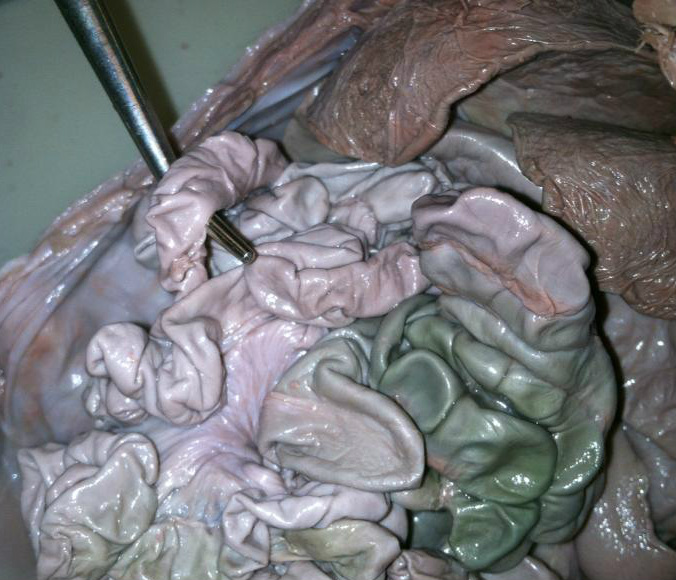 Small Intestine Mesenteries How To Dissect A Fetal Pig