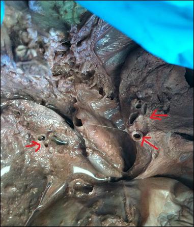 Fetal Pig Pancreas